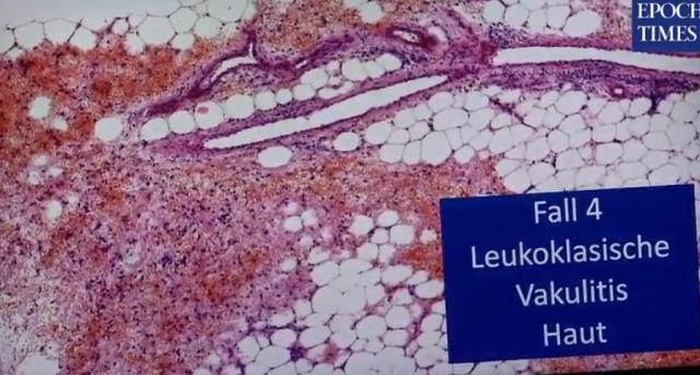 Patólogos alemanes relacionan muertes con la inyección K0 B1T